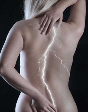 Как лечить защемление спинного нерва?